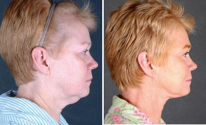Facelift before and after photos in Omaha, NE, Case 5627