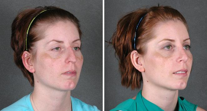 Rhinoplasty before and after photos in Omaha, NE, Case 5784