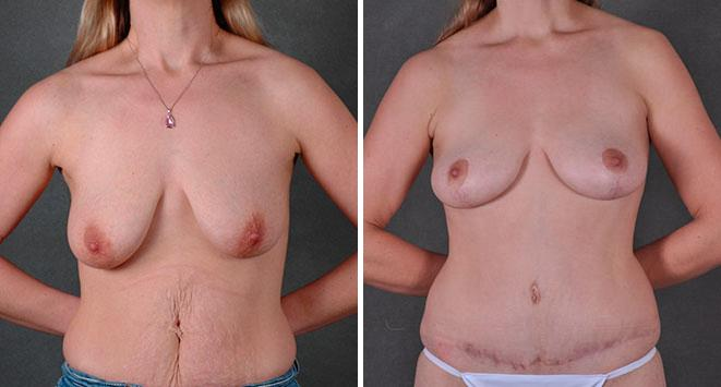 Breast Lift before and after photos in Omaha, NE, Case 7804