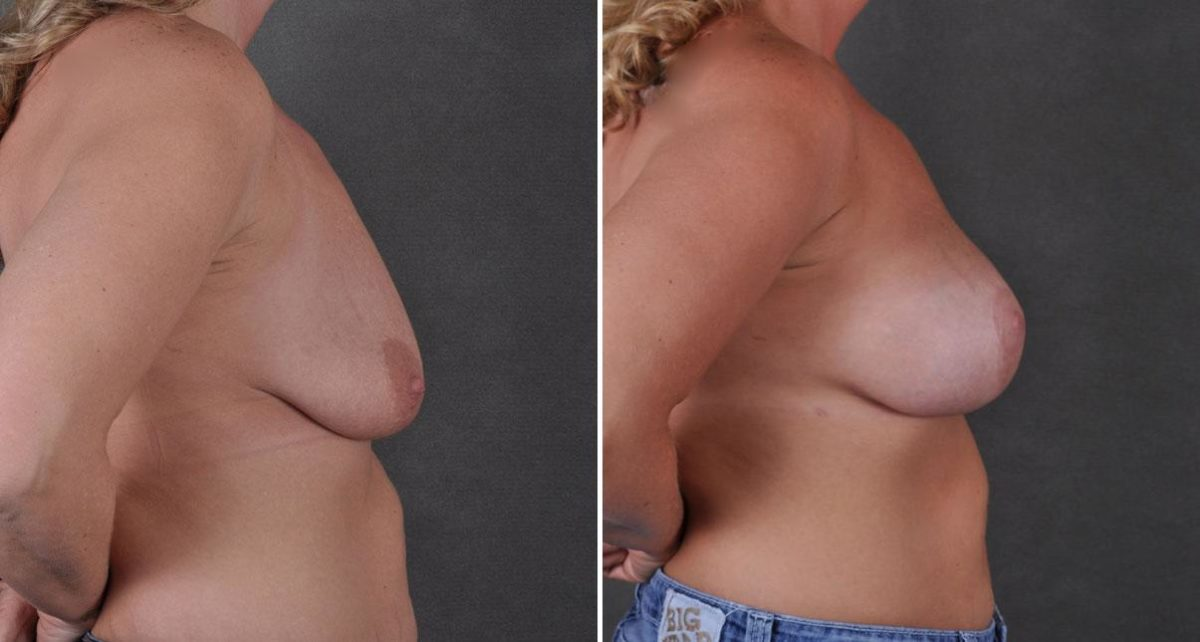 Breast Lift before and after photos in Omaha, NE, Case 8785