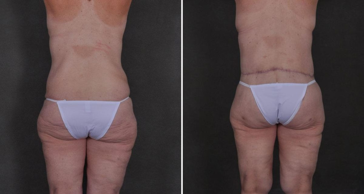 Breast Lift before and after photos in Omaha, NE, Case 8912