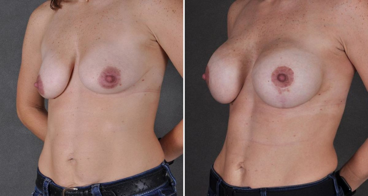 Breast Lift before and after photos in Omaha, NE, Case 9205