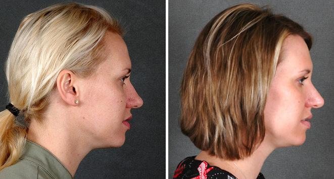 Rhinoplasty before and after photos in Omaha, NE, Case 5951