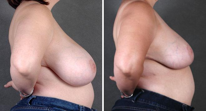 Breast Reduction before and after photos in Omaha, NE, Case 5973