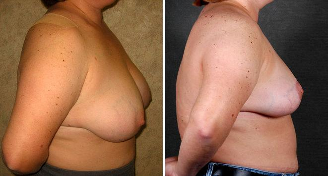 Breast Reduction before and after photos in Omaha, NE, Case 5987