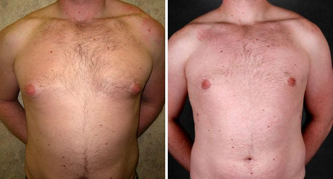Gynecomastia before and after photos in Omaha, NE, Case 6060