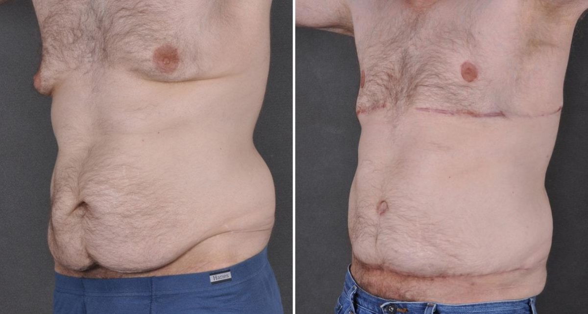 Gynecomastia before and after photos in Omaha, NE, Case 8866