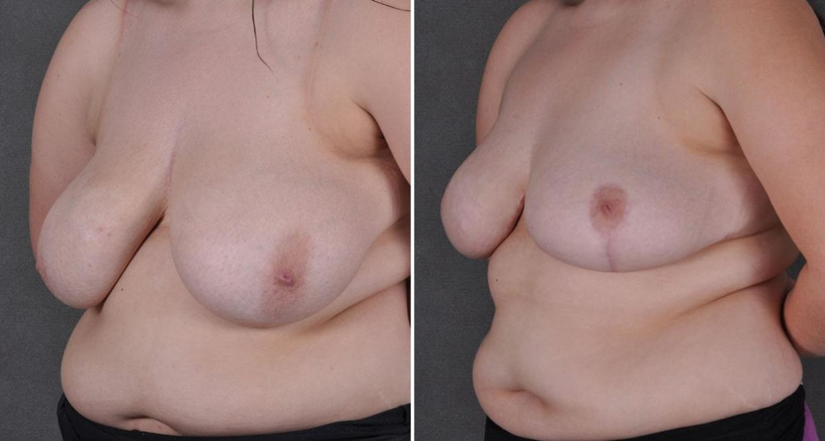 Breast Reduction before and after photos in Omaha, NE, Case 8661