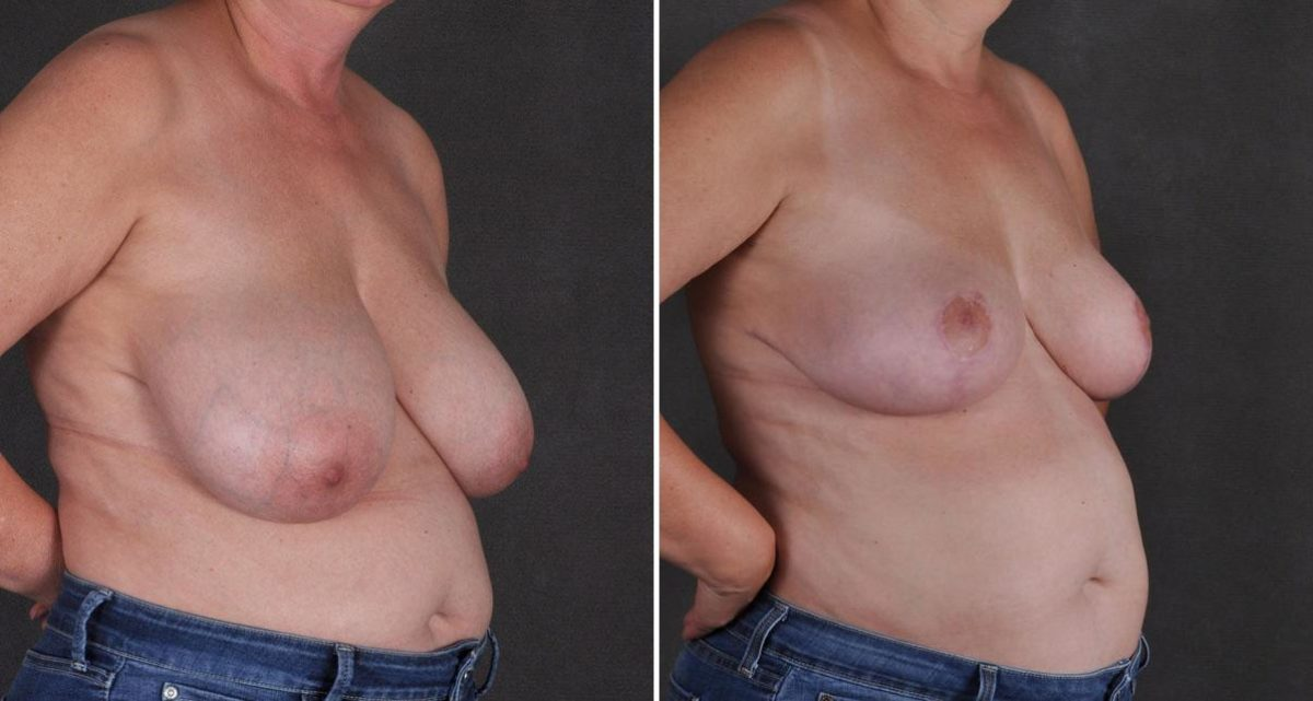 Breast Reduction before and after photos in Omaha, NE, Case 9844