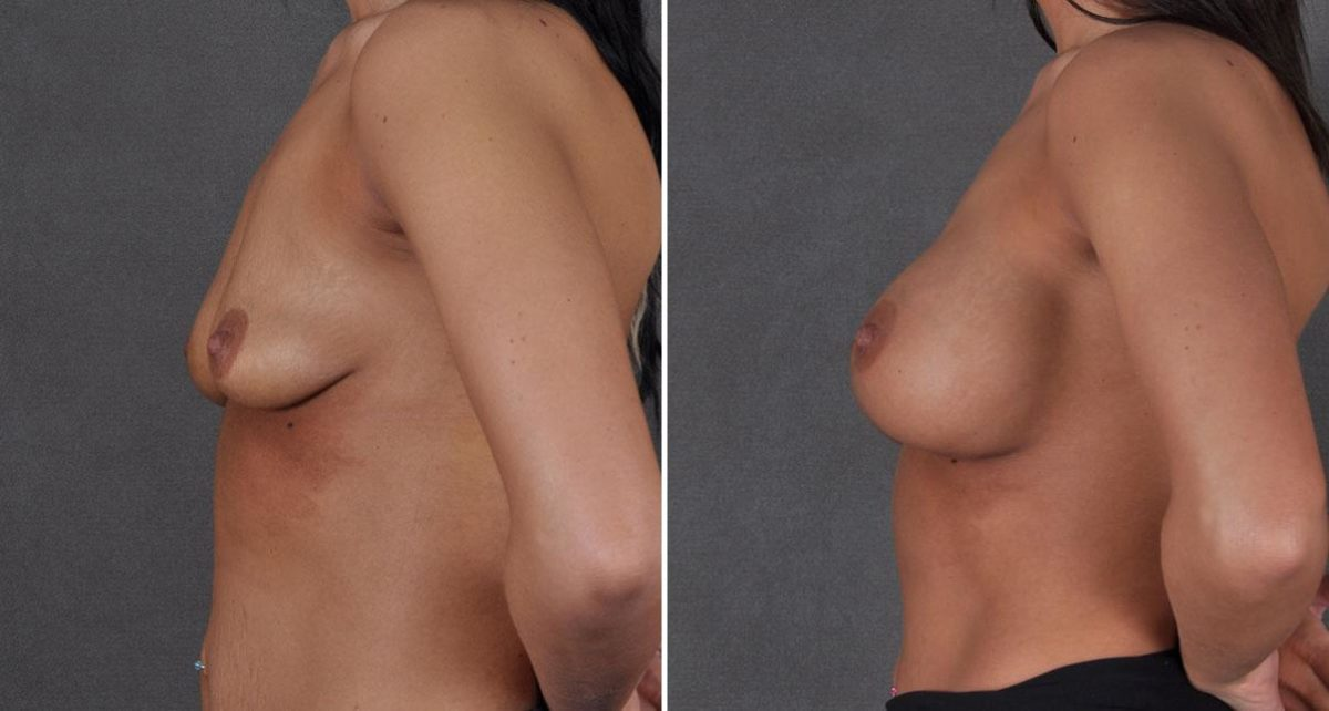 Breast Augmentation before and after photos in Omaha, NE, Case 8701