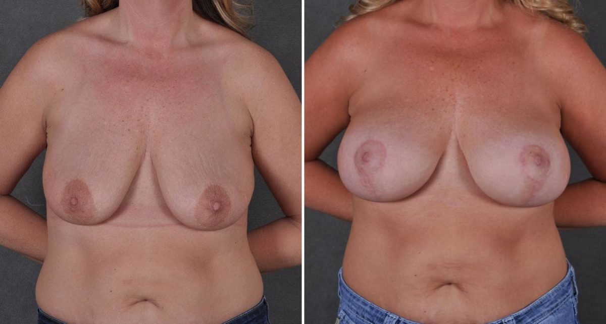 Breast Augmentation before and after photos in Omaha, NE, Case 8778