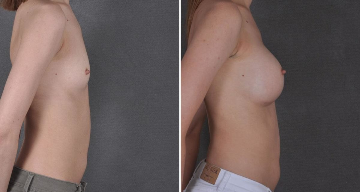 Breast Augmentation before and after photos in Omaha, NE, Case 8638