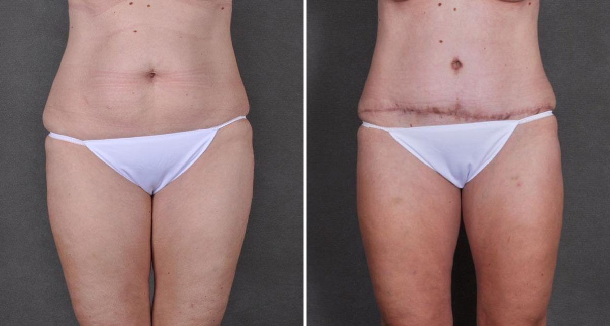 Liposuction before and after photos in Omaha, NE, Case 8755