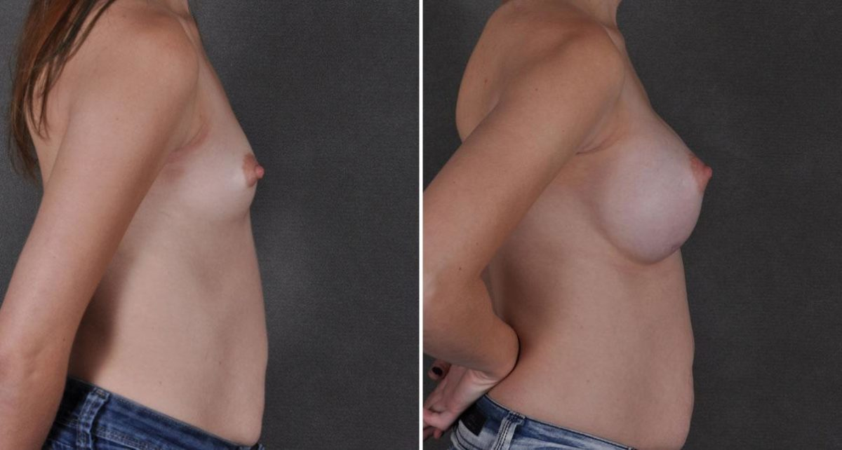 Breast Augmentation before and after photos in Omaha, NE, Case 8868
