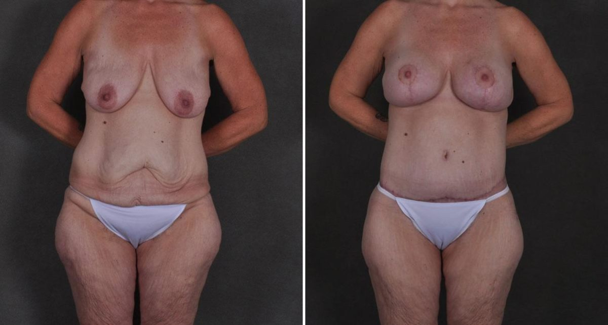 Breast Augmentation before and after photos in Omaha, NE, Case 8911