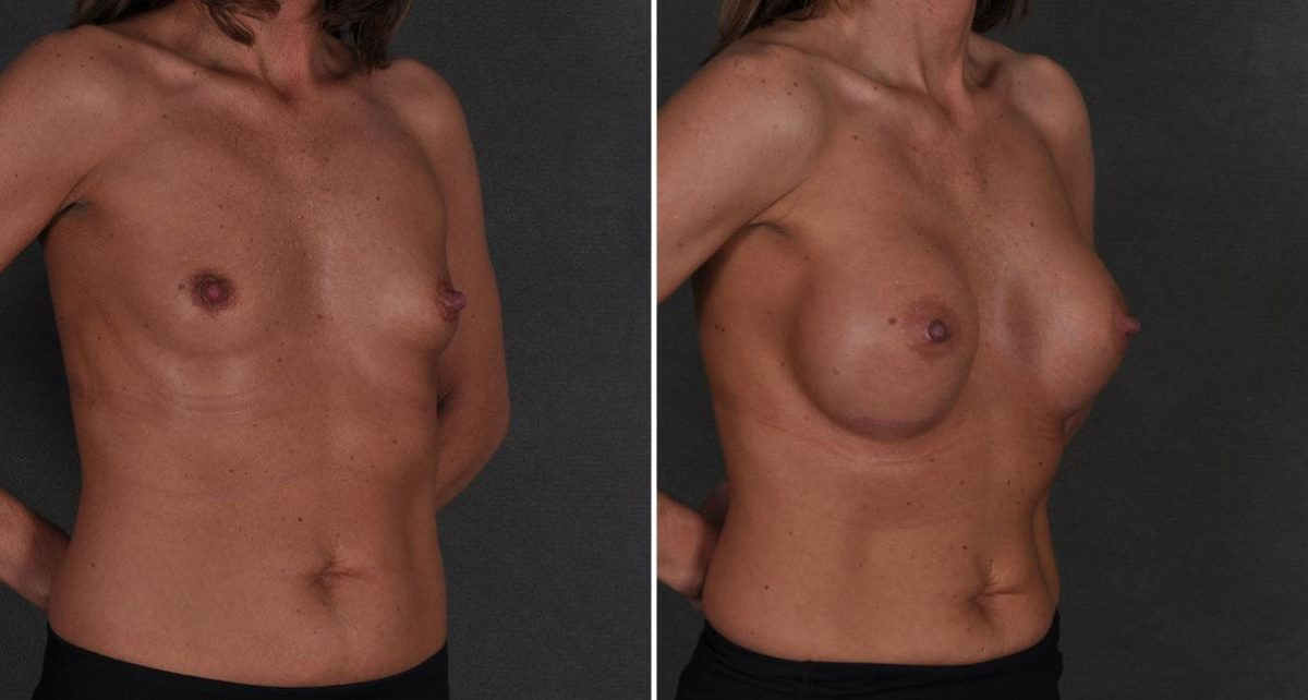 Breast Augmentation before and after photos in Omaha, NE, Case 8813
