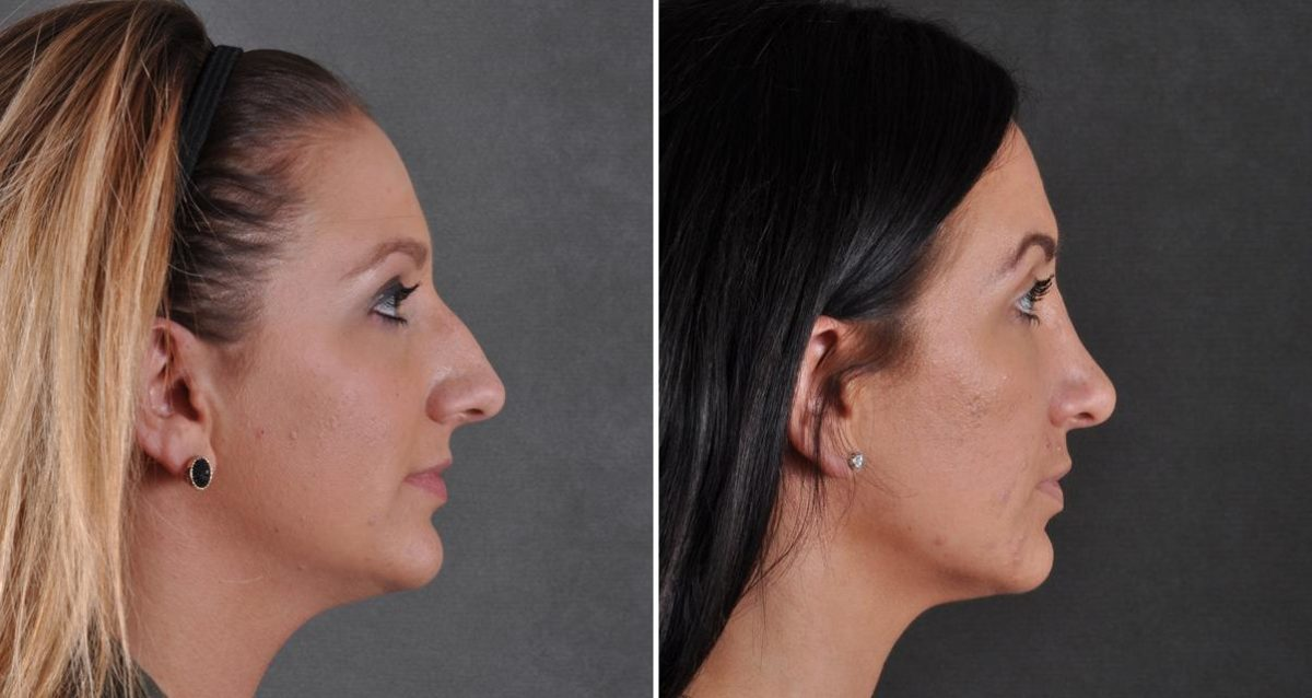 Rhinoplasty before and after photos in Omaha, NE, Case 9488