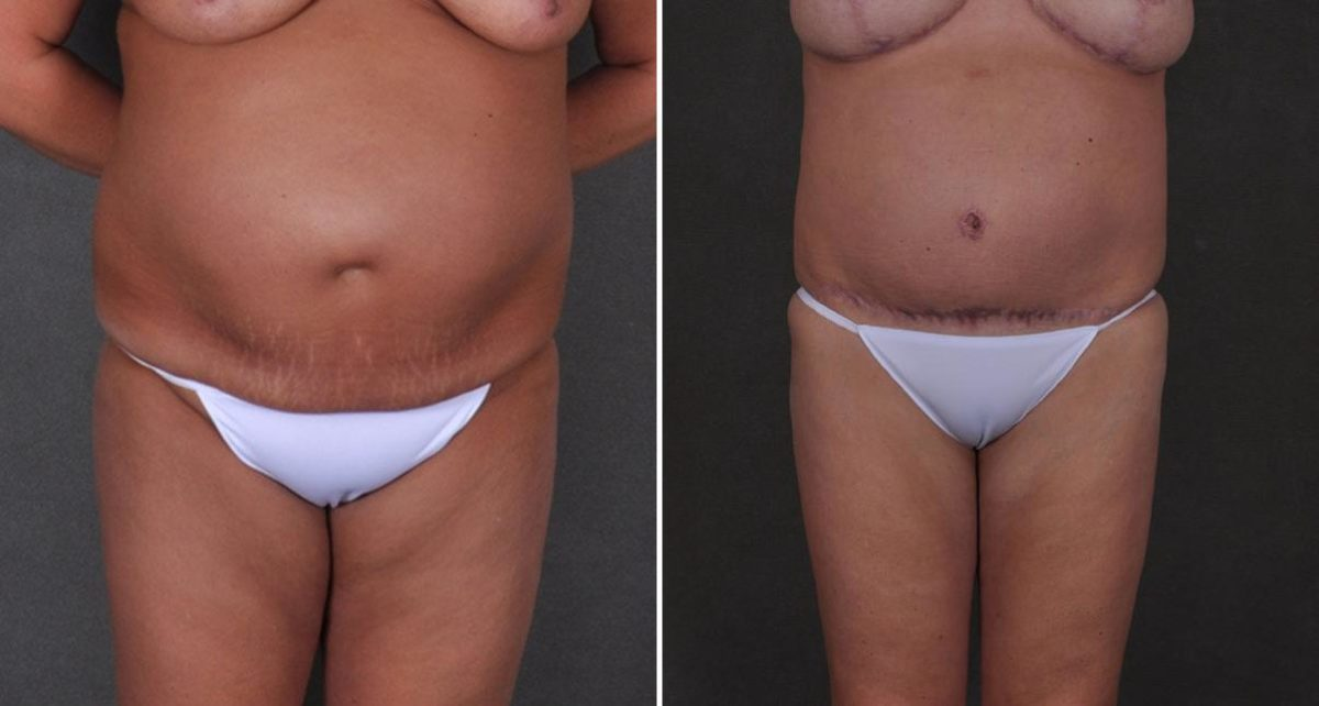 Tummy Tuck before and after photos in Omaha, NE, Case 8977