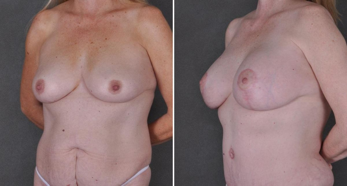 Tummy Tuck before and after photos in Omaha, NE, Case 9191