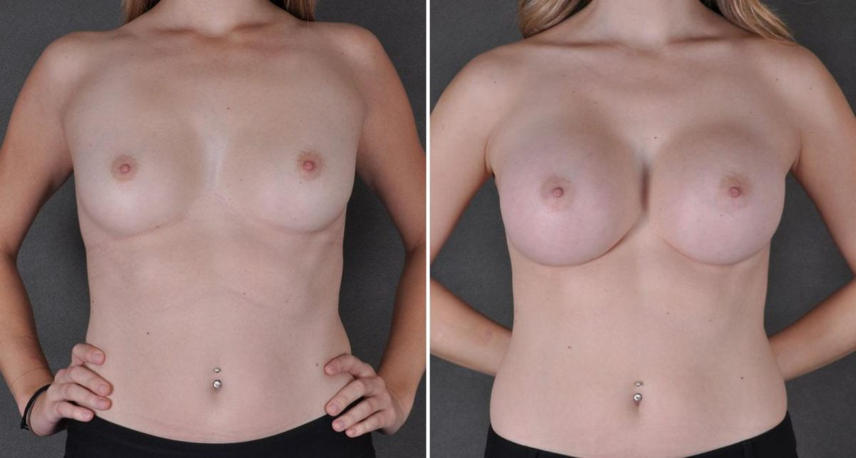 Breast Augmentation before and after photos in Omaha, NE, Case 9010