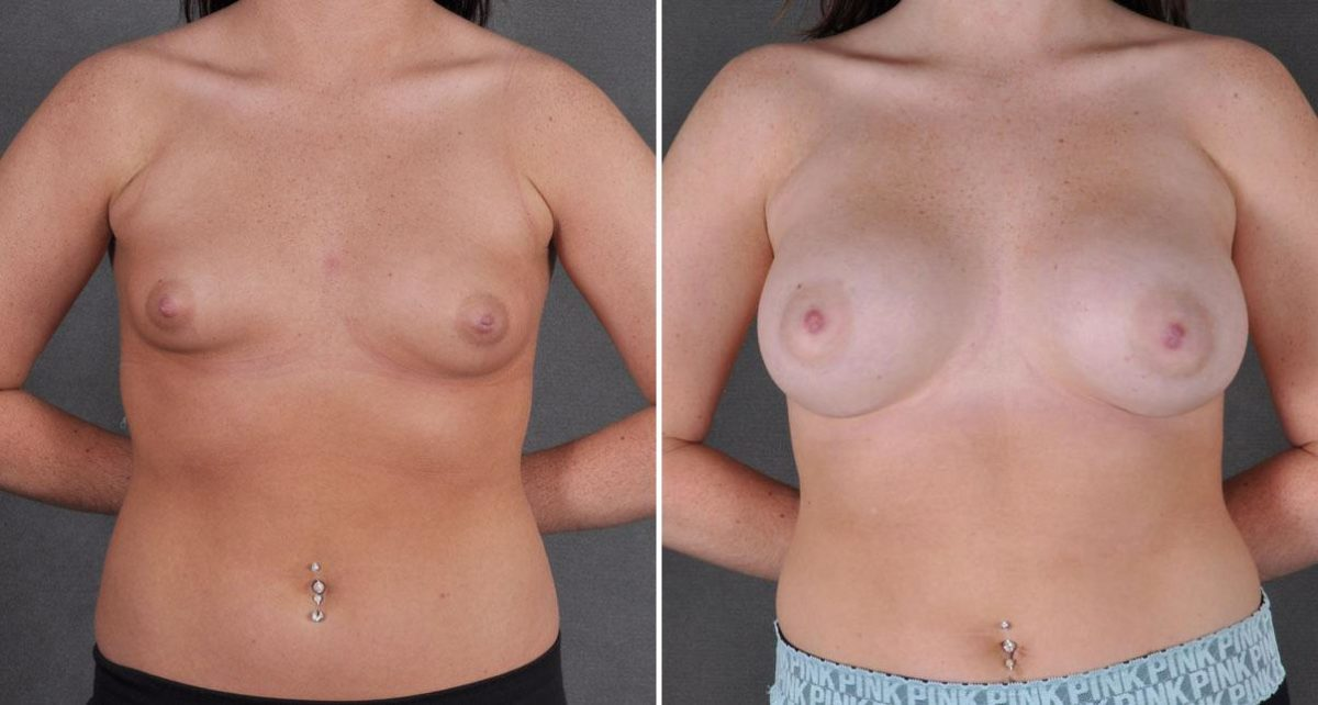 Breast Augmentation before and after photos in Omaha, NE, Case 9107