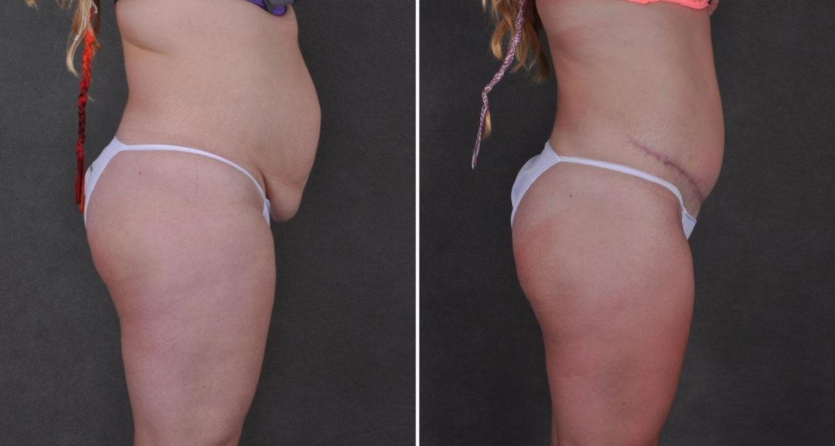 Liposuction before and after photos in Omaha, NE, Case 9282