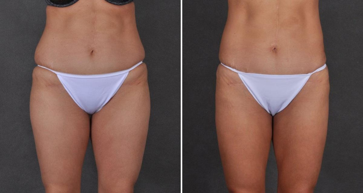 Liposuction before and after photos in Omaha, NE, Case 9737