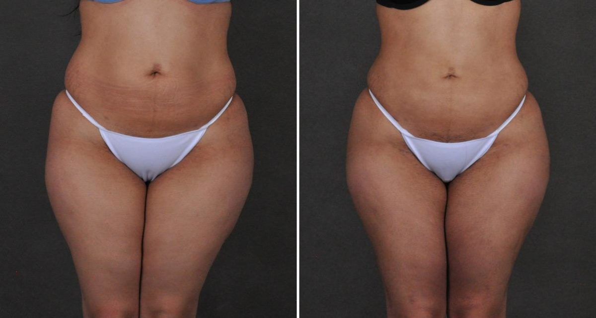 Brazilian Butt Lift before and after photos in Omaha, NE, Case 10228
