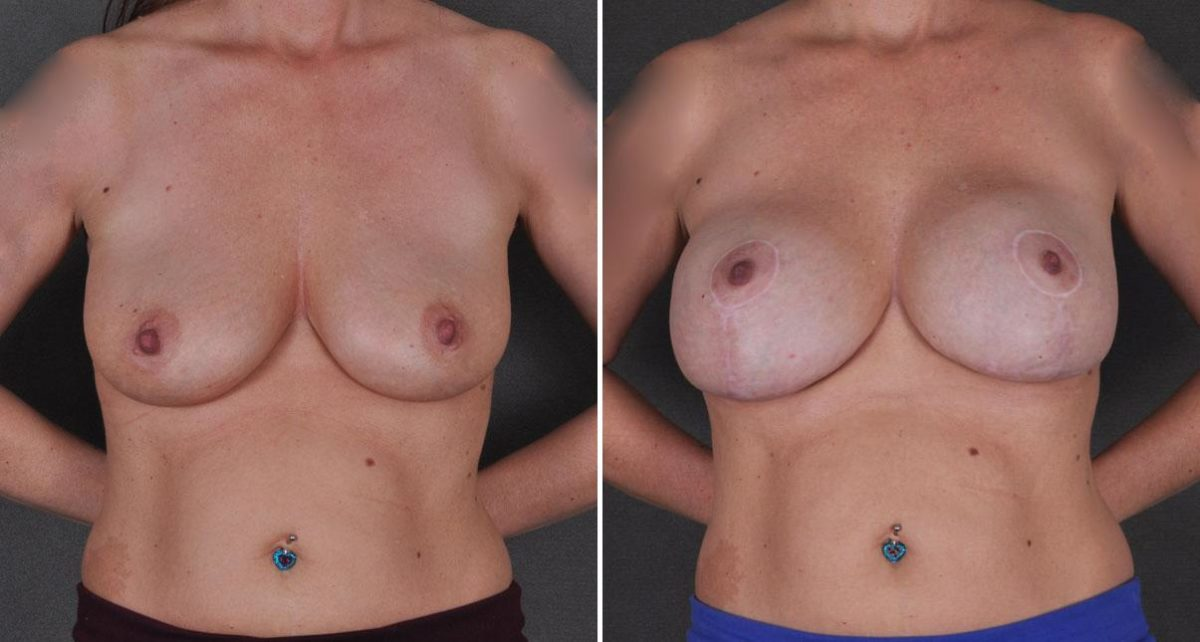Breast Lift before and after photos in Omaha, NE, Case 9221