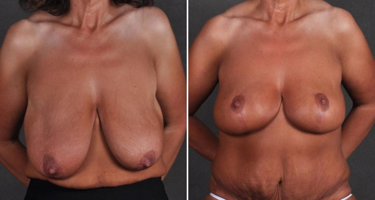 Breast Lift before and after photos in Omaha, NE, Case 9746
