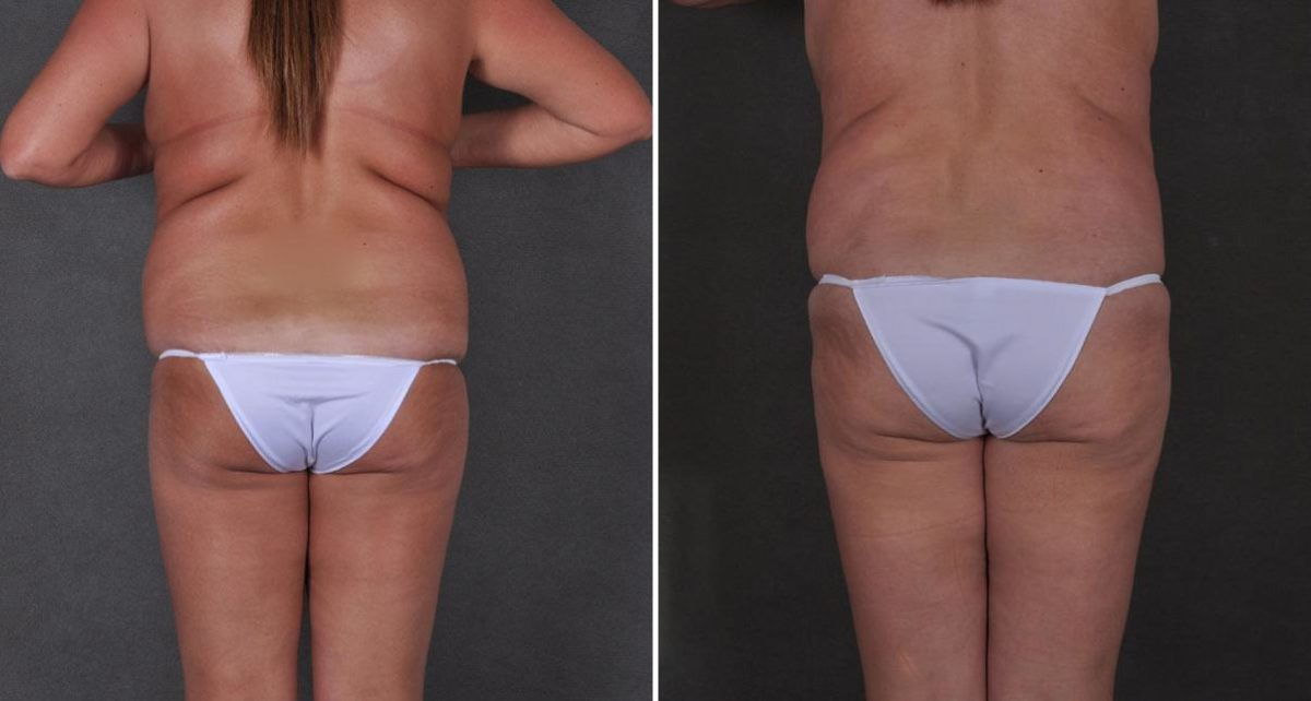 Breast Lift before and after photos in Omaha, NE, Case 9222
