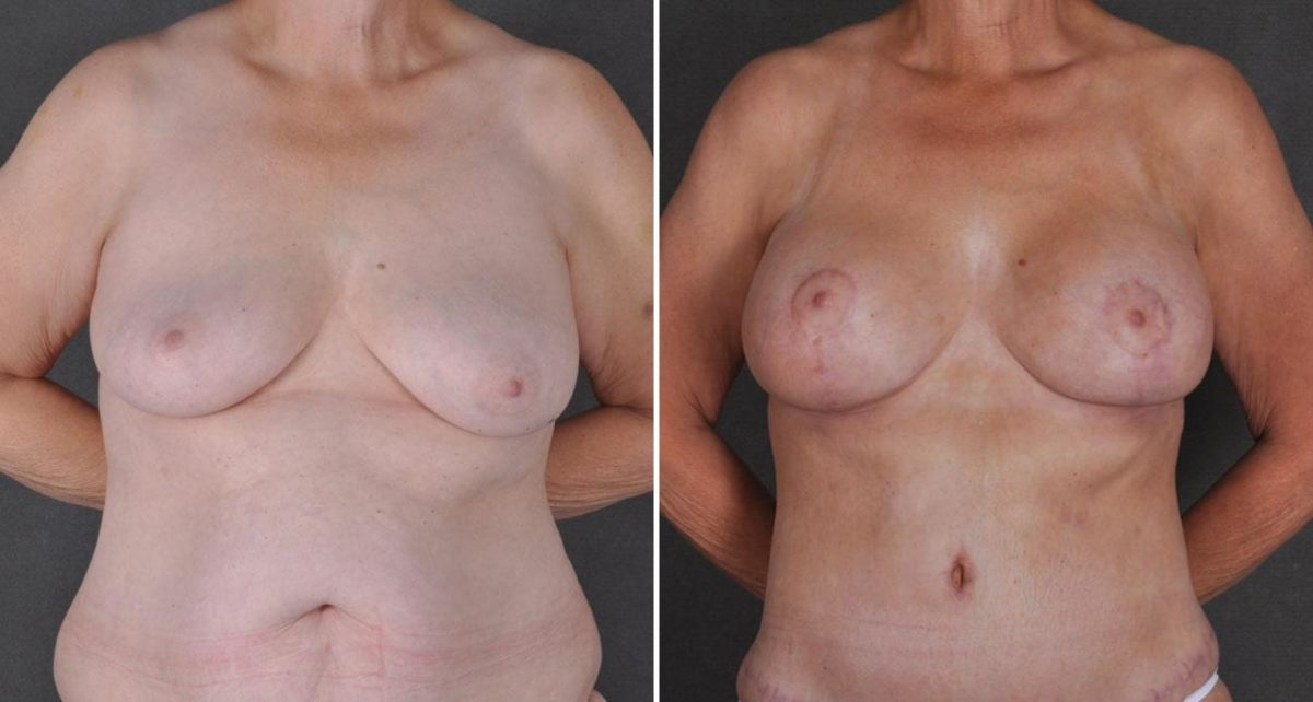 Breast Lift before and after photos in Omaha, NE, Case 9298