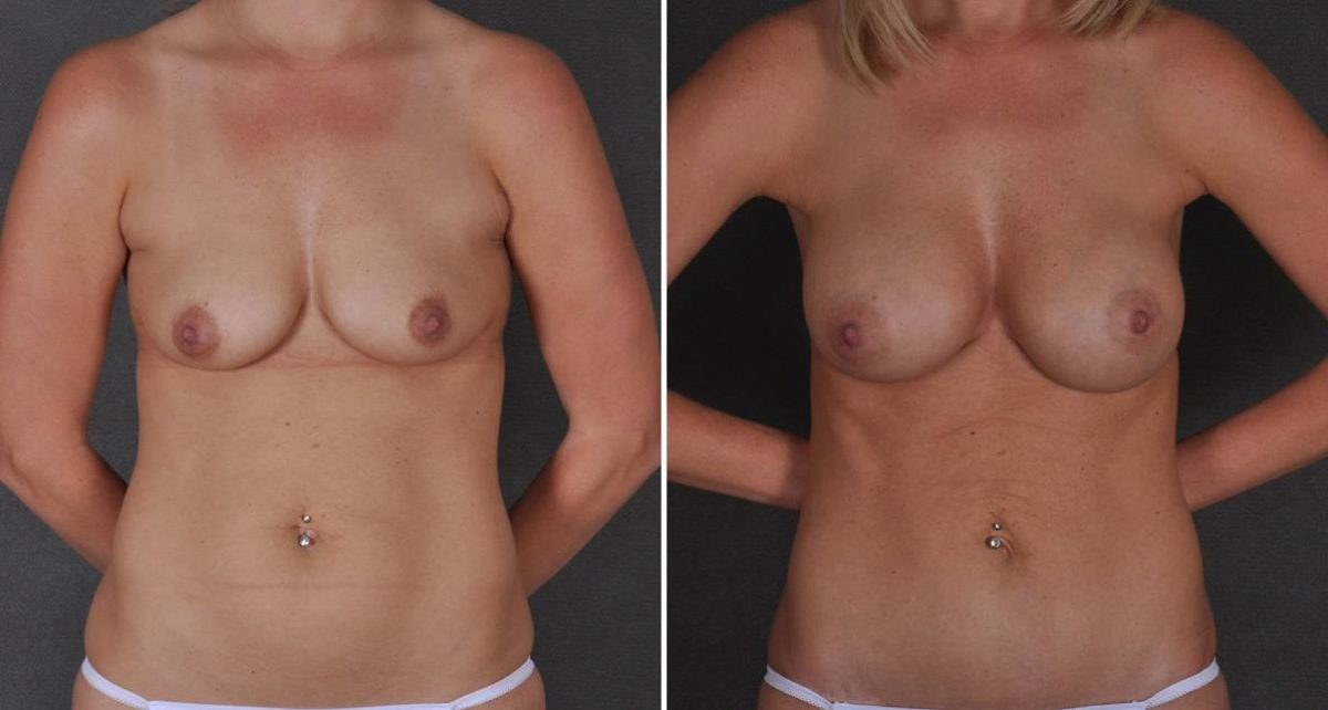 Breast Augmentation before and after photos in Omaha, NE, Case 9348