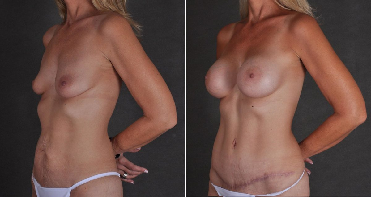 Tummy Tuck before and after photos in Omaha, NE, Case 9726