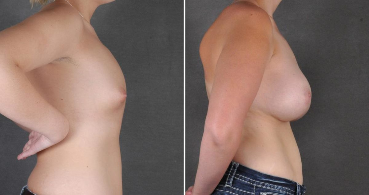 Breast Augmentation before and after photos in Omaha, NE, Case 10310
