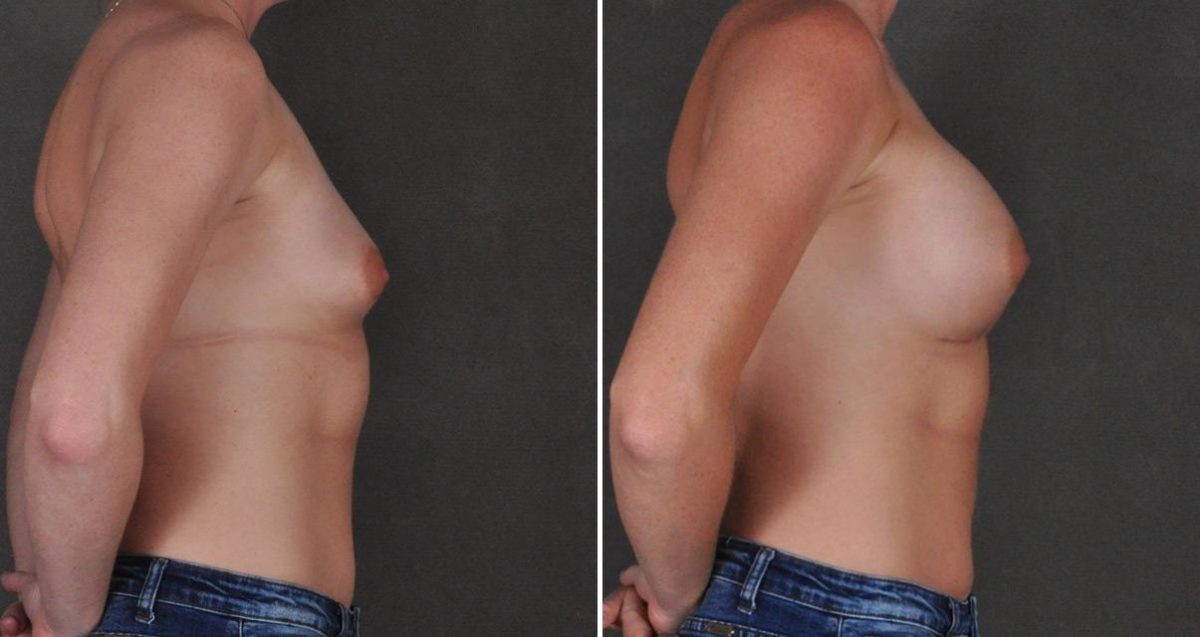Breast Augmentation before and after photos in Omaha, NE, Case 10311