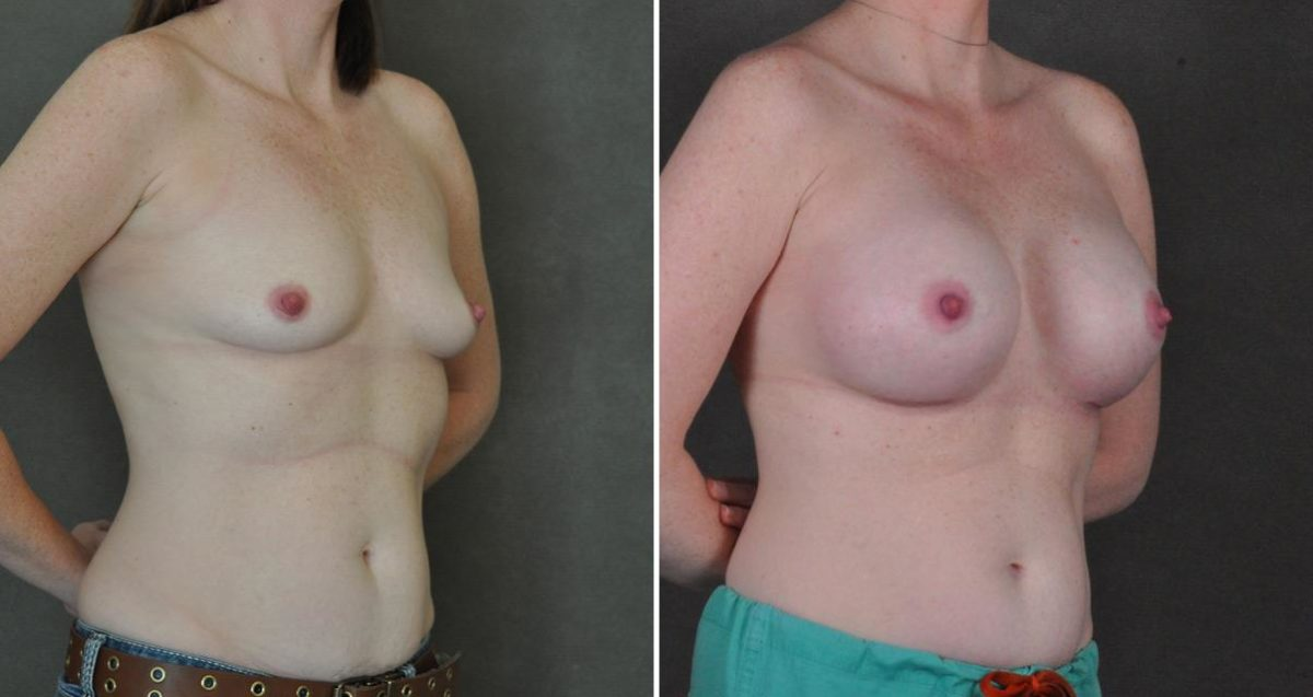 Breast Augmentation before and after photos in Omaha, NE, Case 10312