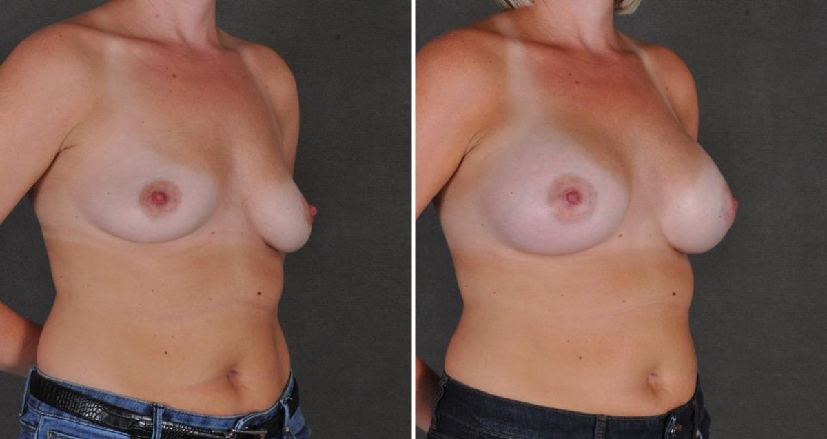 Breast Augmentation before and after photos in Omaha, NE, Case 10314