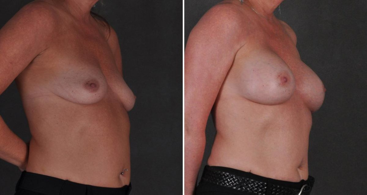 Breast Augmentation before and after photos in Omaha, NE, Case 10335