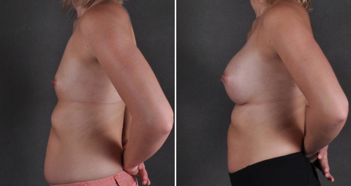 Breast Augmentation before and after photos in Omaha, NE, Case 10275