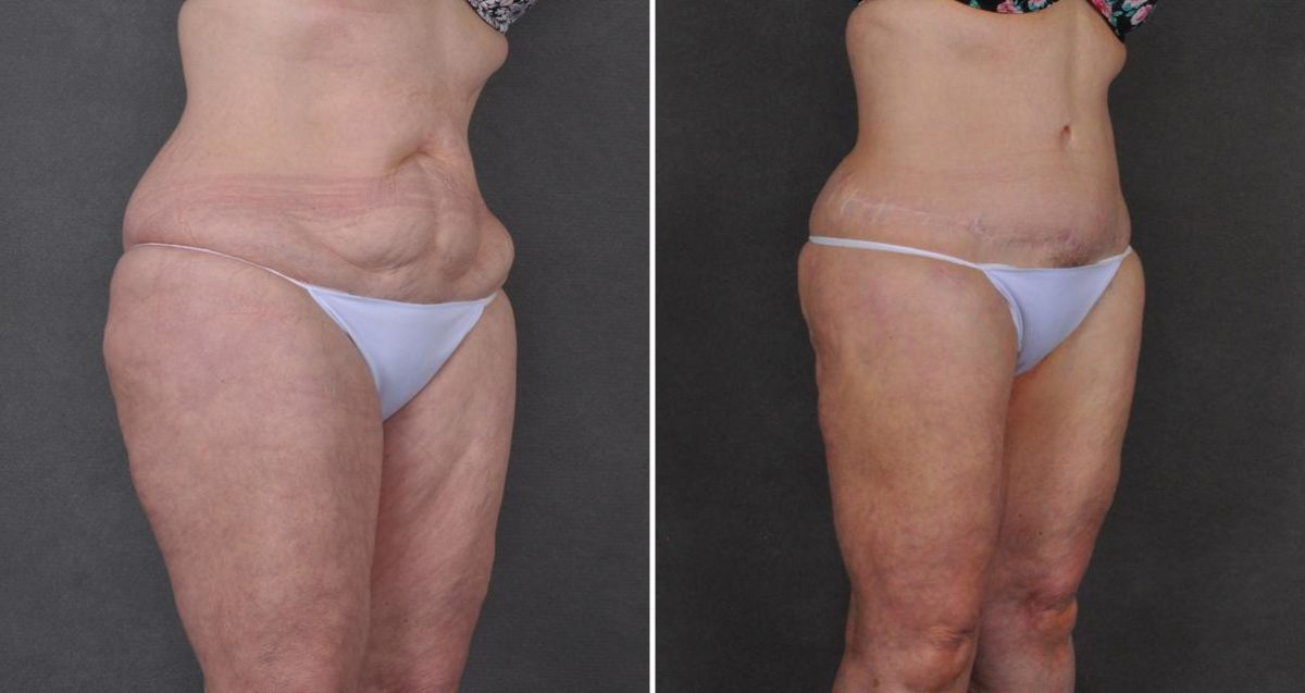 Tummy Tuck before and after photos in Omaha, NE, Case 10357