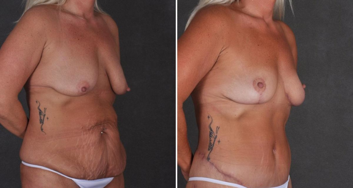 Liposuction before and after photos in Omaha, NE, Case 9924